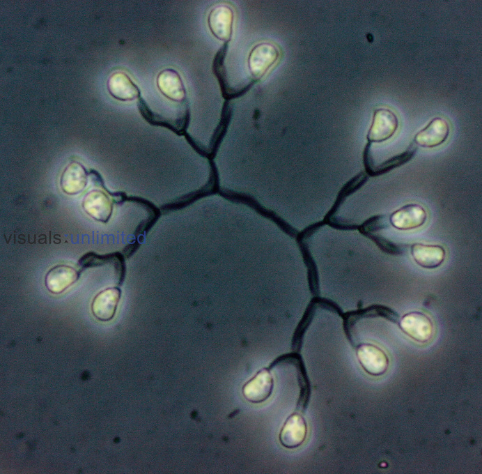 Dictyosphaerium colonial Green Algae. LM