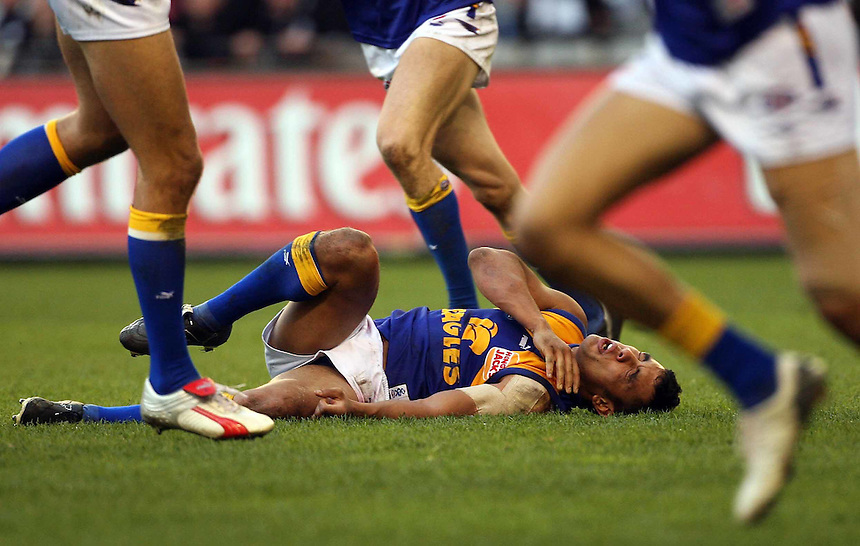AFL Collingwood v West Coast Eagles. Daniel Kerr lies at his teamates feet after taking a hard knock.