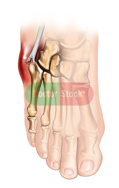 Avulsion of base of 5th metatarsal