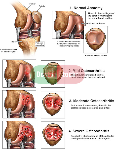 Knee Joint Arthritis. This full color stock medcial exhibit illustrates the stages of Patellofemoral osteoarthritis of the knee. The normal anatomy of the femur, patella, and tibia are compared with those displaying mild, moderate and severe osteoarthritis. The cartilage of the femoral condyles, and posterior patella are illustrated separately to clearly show the changes.