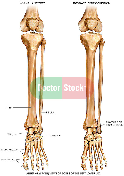 Fractured Ankle Bones (Broken Ankle). This exhibit features two anterior side by side comparisons of the bones of the right lower extremities before and after a fracture to the left ankle. This exhibit was specifically designed to show the minimal appearance of a small distal fibular fracture as compared to normal anatomy. Major anatomical elements are labeled and identified.