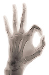 X-ray image of OK hand gesture (color on white) by Jim Wehtje, specialist in x-ray art and design images.