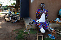 Doreen Arach is  patient of the Gulu Hospital/AVSI orthopedic clinic passes the time knitting while waiting the manufacture of her new prosthetic leg. Her leg was chokked off by an LRA attacker with a panga. Patients live at the clinic while their new limbs are fabricated, and while physical therapists teach them how to use their new limbs. (Rick D'Elia)