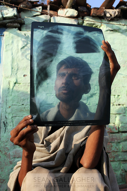 Yakub Akhmed Khan, 27, looks at an X-ray of his lungs in his village near the city of Kanpur. He suffers from Tuberculosis brought upon by his time working as a painter in local tanneries. Health effects from the industry have included cancers, mental health problems, child development issues and skin diseases.
