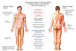This medical exhibit identifies the trigger points, symptoms and underlying conditions of fibromyalgia syndrome (FMS), or myofascial pain syndrome. The bony landmarks and muscles associated with the pressure points are indicated and labeled on two views, anterior (front) and posterior (back), of the male figure.