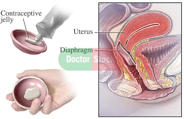 This medical illustration depicts thecorrect placement of a diaphragm.