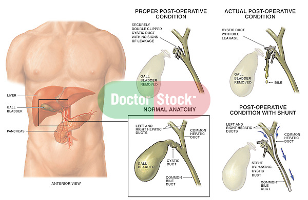 failed cholecystectomy with leaking cystic duct | doctor stock, Human Body