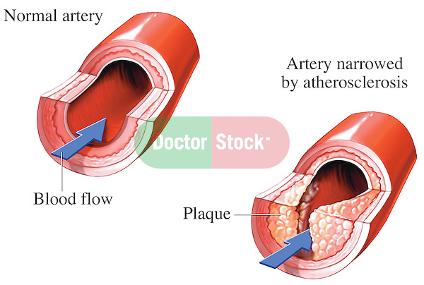 This illustration features a side by side comparison of blood flow through a normal section of artery to that of one showing obstructed blood flow due to plaque and atherosclerosis. Specifically labeled are normal artery, blood flow, artery narrowed by atherosclerosis and plaque.