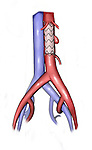 Insertion of catheter into femoral artery up into abdominal aorta for  deployment of endovascular graft and correction of rupture of saccular aneurysm and hemorrhage