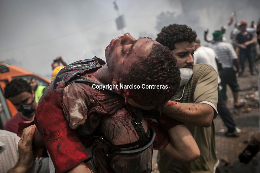 In this Wednesday, Aug. 14, 2013 photo, supporters of the ousted president Mohammed Morsi carry out a comerade injured during clashes with security forces in streets around Al-Raba'a Alawya mosque in the Nasr district of Cairo. (Photo/Narciso Contreras).