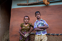 Kalibudi Gope, 19, and her brother Haradhan Gope, 16, have stunted growth and physical deformities since birth. Their limbs are short and weak. They cannot do any heavy work. The siblings also live in Bango village.