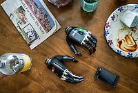 The bionic hands that Les Baugh uses lie on the kitchen table in Mr Baugh's home in Walden, Colorado.  Les uses the hands to practice picking things up but the articulation is limited and they often break. Baugh lost both his arms at the shoulder in a freak electrical accident 40 years ago. Since then, he has managed life mostly without the help of prosthetic arms, which he finds to be more of an uncomfortable nuisance than a help. In 2013, Les underwent a state of the art surgery called Targeted Muscle Reinnervation, where the bundle of nerves at the stump of his shoulders were remapped to his pectoralis muscles. After he recovered from surgery, researchers at Johns Hopkins Applied Physics Lab fitted him with two robotic arms, called the MPL or Modular Prosthetic Limb, and he was able to manipulate objects with his hands, just by thinking about it. The MPL is a state of the art prototype, and not ready for take-home, so Baugh has been practicing mind control at home in rural Walden using a virtual reality game paired with less advanced prosthetic limbs. At a later stage the researchers at Johns Hopkins hope to get Les to try more advanced versions of the MPL  in the hope that his remapped nerves will have grown deeper into his pecs and he'll be able to manipulate the arms more effectively.
