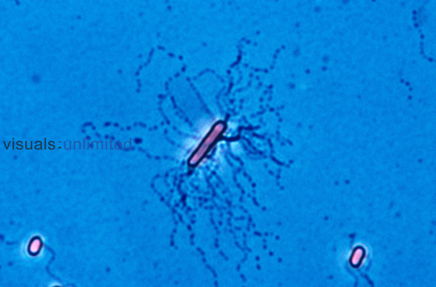 Proteus vulgaris Bacteria showing peritrichous flagella. LM X500.