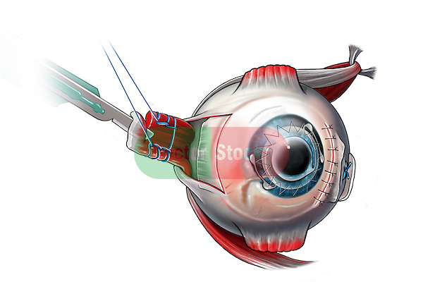 Estropia condition of the eye and surgical repair. The lateral rectus muscle is released from its insertion point, a portion is resected to shorten the muscle length and it is reattached to its original insertion point to bring the eye to the center position.