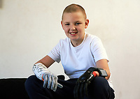 Pictured: Alan Gifford. Friday 18 August 2017<br /> Re: 11 year old Alan Gifford who has two prosthetic arms, Loughor near Swansea, Wales, UK.