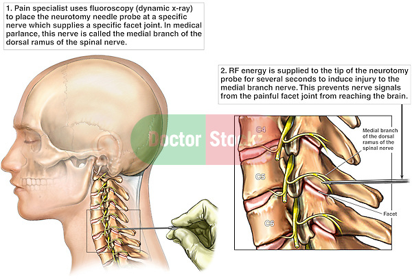 Neck Spinal Injury - Cervical Facet Radio Frequency Neurotomy