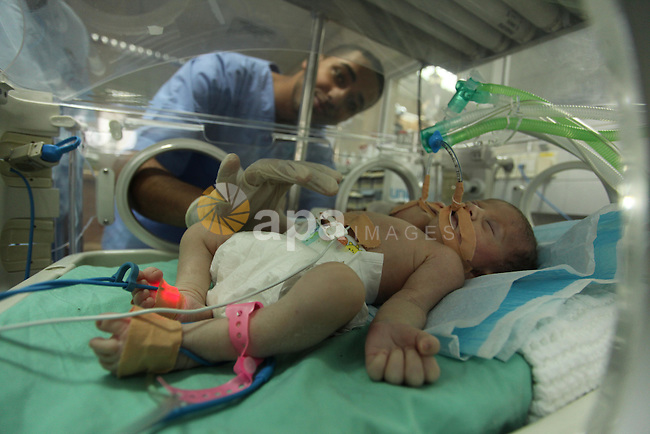 One-day-old Palestinian conjoined twin boys lie in an incubator at the nursery at al-Shifa Hospital in Gaza City on November 23, 2016. Photo by Ashraf Amra
