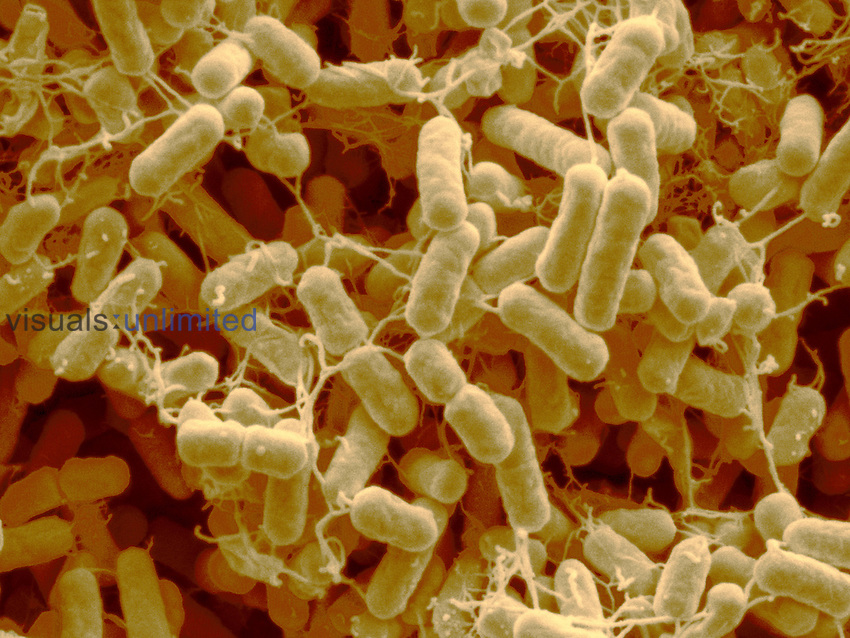Salmonella typhimurium Bacteria are pathogenic and causes food poisoning. They are often found on chicken skin. SEM X7815.