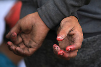 BOGOTA, COLOMBIA - April 14:  The dirty hands of a homeless Venezuelan are seen in Bogota, Colombia, Tuesday, April 14, 2020. Thousands of Venezuelan migrants were left on the streets of the main Colombian cities due to mandatory preventive quarantine decreed by the government to prevent the spread of the Covid-19 pandemic. (Photo by Daniel Munoz/VIEWpress)