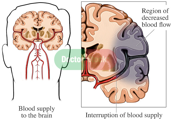 Clearly depicts the anatomy of the brain and effects of a stroke (cerebrovascular accident or cva) of the right middle cerebral artery.  Shows an enlargement of the right side brain showing a region of stroke injury secondary to an interruption of blood supply due to a clot lodging in the distal vessel. Labels identify a region of decreased blood flow and blood supply to the brain, interruption of blood supply due to a blood clot, and resulting brain infarction.