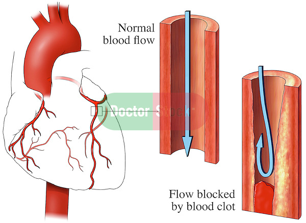 This medical exhibit pictures an anterior (front) view of the heart and coronary arteries. A second illustration displays an enlarged cut-away view of a normal left anterior descending coronary artery showing a normal, clear lumen.  A third and final graphic displays the same enlargement with blood clot partially occluding the lumen of the vessel, reducing blood flow. Colored arrows and labels identify normal blood flow and flow blocked by blood clot.