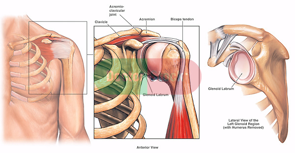 This full color medical exhibit illustrates the normal anatomy of the left shoulder as seen from an anterior (front) and a lateral (side) view. All associated anatomical structures, including the clavicle, humerus, acromioclavicular (AC) joint, acromion, biceps tendon, subacromial bursa, glenoid, and glenoid fossa, are depicted.