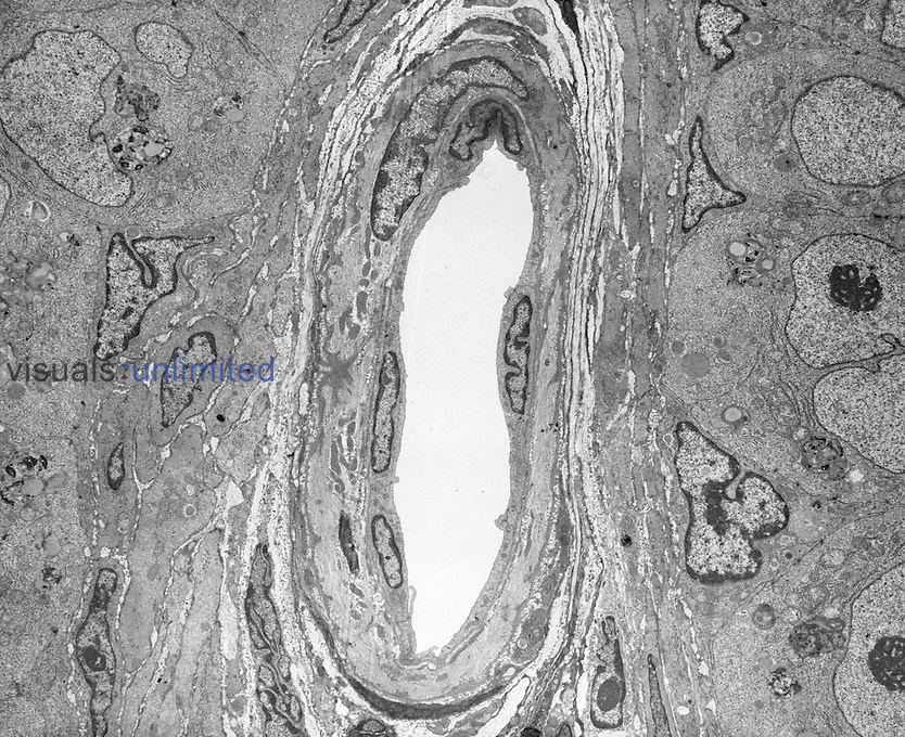 Cross section through an arteriole, TEM