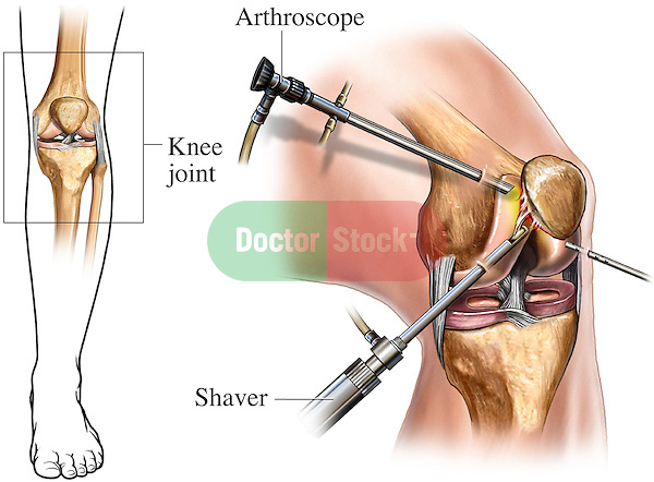 This full color medical illustration shows an arthroscopic knee surgery orientation. The first graphic provides an orientation to the knee joint from an anterior (front) view. A separate enlarged image, from an antero-medial (front, inner side) view, labels the instrumentation involved in knee surgery, including an arthroscope and shaver.