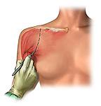 skin incision over shoulder