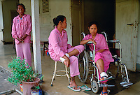Leprosy patients at the Sitanala Hospital, Jakarta, Indonesia