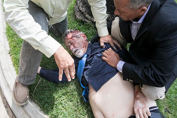 CAR35 - CARACAS (VENEZUELA), 05/07/2017 - El diputado Américo De Grazia (c) es auxiliado tras ser golpeado por manifestantes que ingresaron a la Asamblea Nacional este miércoles 5 de julio de 2017, en Caracas (Venezuela). Un grupo de simpatizantes del Gobierno venezolano irrumpió hoy por la fuerza en la Asamblea Nacional (AN, Parlamento), de mayoría opositora, y causaron heridas a algunos diputados que se encontraban en el recinto para una sesión en conmemoración del Día de la Independencia en el país. EFE/MIGUEL GUTIÉRREZ