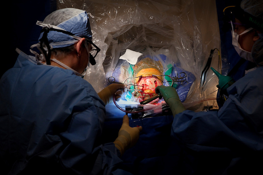 San Francisco, California, January 6, 2011 - From left, University of California San Francisco neurosurgeon Dr. Philip Starr and clinical fellow Dr. Ellen Air drill two holes into the skull of patient Linda Sharp during an iMRI surgery at UCSF Medical Center. The MRI machine photographs the patient during the surgery allowing the doctors operating to view the procedure as well as support doctors and technicians to monitor from an outside room.  The iMRI procedure uses Deep brain stimulation (DBS), which has been used for over a decade to treat movement disorders such as Parkinson's disease, essential tremor, and dystonia. DBS uses a pulse generator implanted in the chest, similar to a pacemaker, to deliver pulses to specific regions of the brain via a permanently implanted electrode. In the U.S., DBS is normally done while the patient is awake, because the surgeon needs to induce the symptoms (like the involuntary movements of Parkinson's) to know if he's in the right place, and if the patient is unconscious, the symptoms can't be induced. Many patients find it hard to tolerate. Their head is clamped in a frame, they're aware of their surroundings, and the surgeon is deliberately producing tremors and twitches while they lie there...Interventional MRI (or iMRI) allows surgeons to implant these electrodes while the patient is unconscious taking advantage of MR imaging in real time by performing procedures inside the scanner itself.