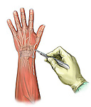 Wrist incision-dorsal view; depicts an palmar view of the forearm and hand An incision is made to expose the radius