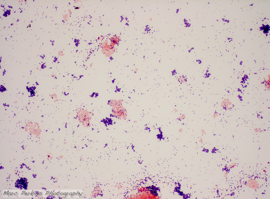 A slide demonstrating the gram stain.  On the slide are two species of bacteria, one of which is a gram positive coccus (Staphylococcus aureus, stained dark purple) and the other a gram-negative bacillus (Escherichia coli, stained pink).  Seen at approximately 400x magnification.