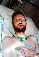 Pictured: Peter Bowen in his hospital bed. <br /> Re: Convicted murderer David Wyn Davies, stabbed a door at his home while imitating the horror shower scene from the film Psycho, in Swansea, Wales, UK.<br /> 38 year old David Wyn Davies, pretended to be the Norman Bates, the character from the film, and made the terrifying sounds from the famous Hitchcock thriller.<br /> But he remains in prison after being recalled to serve more of his initial life sentence.<br /> Davies was sent to jailed for life in 2005 for the murder of Peter Bowen, homeless man in Swansea city centre in June 2000.<br /> He kicked and stabbed Mr Bowen twice. He then carried on with the attack even as rescuers tried to treat his victim.