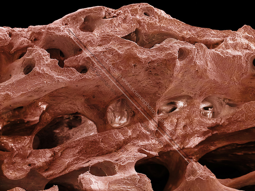 SEM of Human bone. This image shows the cancellous (spongy) bone of the human shin. Bone tissue is either compact or cancellous. Compact bone usually makes up the exterior of the bone, while cancellous bone is found in the interior. Cancellous bone is characterised by a honeycomb arrangement of trabeculae. These structures help to provide support and strength. The spaces within this tissue normally contain bone marrow, a blood forming substance.  Magnification is x50 when printed 10 cm wide.