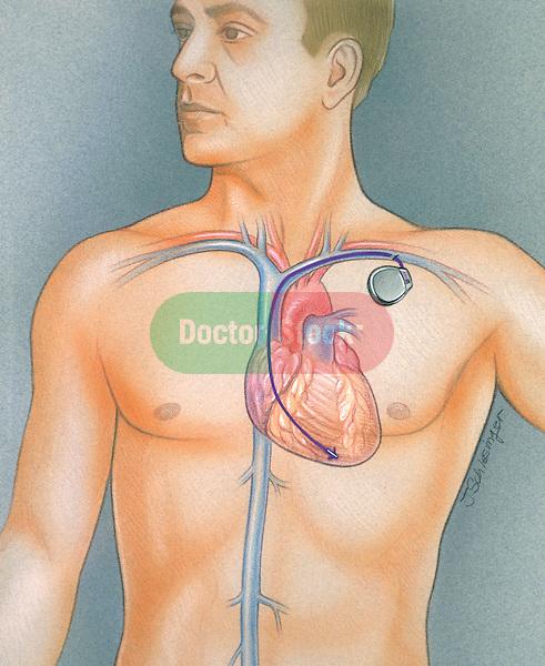 illustration of pacemaker implantation