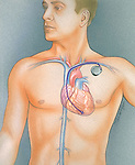 illustration of pacemaker implantation