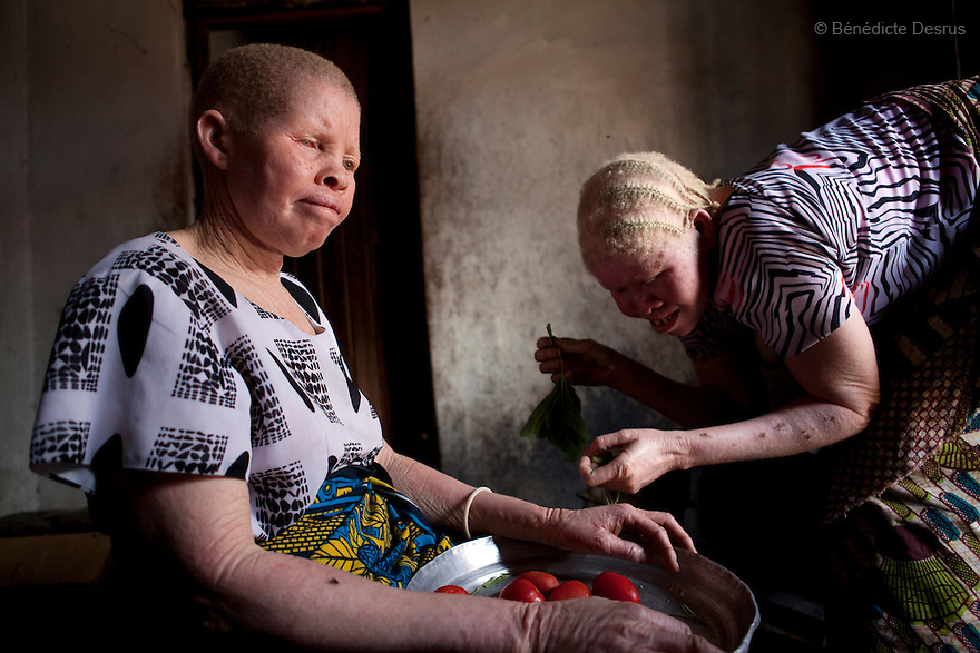 June 28, 2010 - Dar es Salaam, Tanzania - Jutia Jalehe and Mwajuma Ally, the 21 year old daughter of Nuru Mohamedy prepare dinner at home. Ali Mohamed is a 61 year old Muslim man with albinism living in Tanzania where he has a shop selling rice and grains. Ali married his first wife, Jutia Jalehe, in 1978. Jutia is also an albino and together they had 1 son with albinism named Salehe Ally. In 1983, Mohamed married his second wife, Nuru Mohamedy who did not have Albinism. Together they had 6 children, two of them with albinism and four of them without albinism. Albinism is a recessive gene but when two carriers of the gene have a child it has a one in four chance of getting albinism. Tanzania is believed to have Africa' s largest population of albinos, a genetic condition caused by a lack of melanin in the skin, eyes and hair and has an incidence seven times higher than elsewhere in the world. Over the last three years people with albinism have been threatened by an alarming increase in the criminal trade of Albino body parts. At least 53 albinos have been killed since 2007, some as young as six months old. Many more have been attacked with machetes and their limbs stolen while they are still alive. Witch doctors tell their clients that the body parts will bring them luck in love, life and business. The belief that albino body parts have magical powers has driven thousands of Africa's albinos into hiding, fearful of losing their lives and limbs to unscrupulous dealers who can make up to US$75,000 selling a complete dismembered set. The killings have now spread to neighboring countries, like Kenya, Uganda and Burundi and an international market for albino body parts has been rumored to reach as far as West Africa. Photo credit: Benedicte Desrus