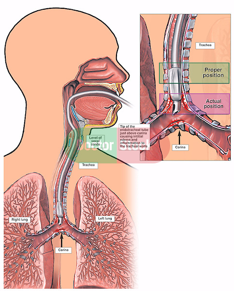 This medical exhibit demonstrates the improper placement of an endotracheal tube within the trachea. Shows improper placement of the endotracheal tube inserted through the mouth to the tracheal carina, the division of trachea into left and right bronchi. An enlargement of the tube within the distal trachea displays the correct level of termination. A text box is supplied with dated notes from a specific patient's hospital chart. As with all exhibits, your client's text can be substituted.