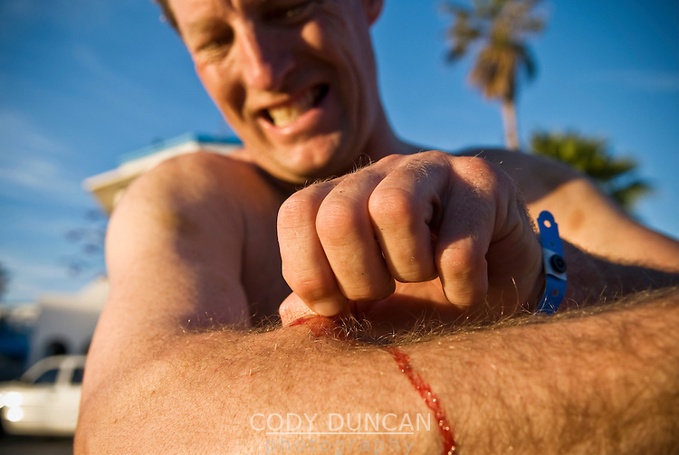 Adult male motorcycle rider pulling Cholla cactus thorns from arm after riding in desert of Baja California, Mexico