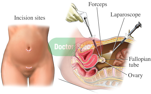 This medical illustration shows a laparoscopic tubal ligation (tied tubes) with the surgeon using a laparoscope to view the position of the fallopian (ovarian) tube while it is closed off with a forceps device.