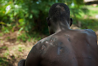 Robert Opus, Ugandan army soldier was wounded by bomb shrapnel during Iron Fist offensive against Lord's Resistance Army (LRA) in Kitgum in 1989. He still has shrapnels in his shoulder.