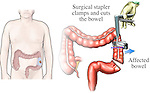 This medical exhibit illustrates the removal a portion of cancerous bowel via the use of a surgical stapler.