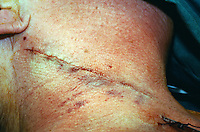 Carotid endarterectomy surgery. Sutures in the incision in the neck...©shoutpictures.com.john@shoutpictures.com
