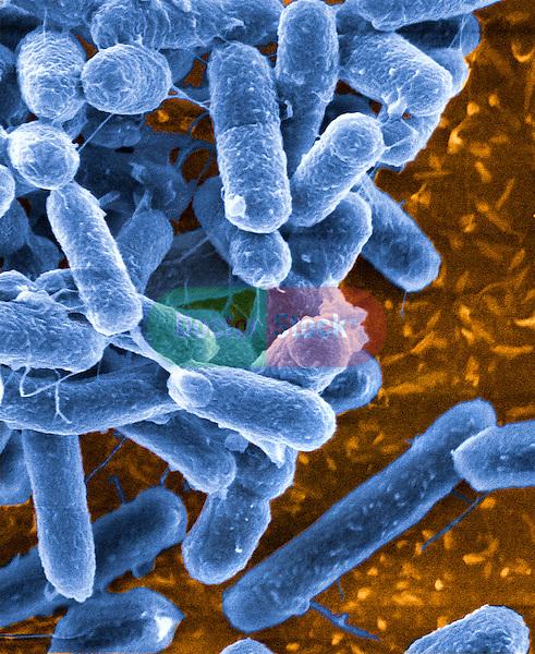 Bacteria, verotoxigenic E coli, E. coli causes 'Hamburger disease' E coli, E. coli, O157:H7 Food poisoning, enteritidis, intestinal disorders hemorrhagic colitis, hemolytic uremic syndrome, 25,000x magnification