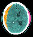 CT scans of a 67 year old woman who fell and hit the left side of her head, resulting in an acute subdural hematoma along the right frontal, parietal, and temporal lobes which caused a significant mass effect including a right-to-left subfalcine herniation. There is also an acute hemorrhagic contusion along the anterior aspect of the left temporal  lobe, an acute subarachnoid hemorrhage within the left sylvian fissure, and an acute subdural hematoma along the left frontal lobe. There are skull and facial bone fractures, including an acute fracture involving the left temporal skull which continues inferiorly to involve the anterior floor of the left middle cranial fossa and the left greater wing of the sphenoid. There is also an acute hematoma within the superior medial aspect of the left orbit.