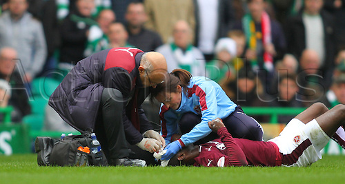 02.04.2016. Celtic Park, Glasgow, Scotland. Scottish Football Premiership Celtic versus Hearts. Juwon Oshaniwa is treated for his head knock