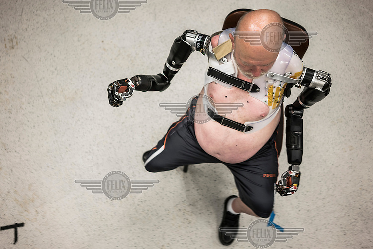 Les Baugh wears the Modular Prosthetic Limbs at Johns Hopkins Applied Physics Lab in Maryland. Baugh lost both his arms at the shoulder in a freak electrical accident 40 years ago. Since then, he has managed life mostly without the help of prosthetic arms, which he finds to be more of an uncomfortable nuisance than a help. In 2013, Les underwent a state of the art surgery called Targeted Muscle Reinnervation, where the bundle of nerves at the stump of his shoulders were remapped to his pectoralis muscles. After he recovered from surgery, researchers at Johns Hopkins Applied Physics Lab fitted him with two robotic arms, called the MPL or Modular Prosthetic Limb, and he was able to manipulate objects with his hands, just by thinking about it. The MPL is a state of the art prototype, and not ready for take-home, so Baugh has been practicing mind control at home in rural Walden using a virtual reality game paired with less advanced prosthetic limbs. At a later stage the researchers at Johns Hopkins hope to get Les to try more advanced versions of the MPL  in the hope that his remapped nerves will have grown deeper into his pecs and he'll be able to manipulate the arms more effectively.