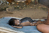 Pará State, Brazil. Aldeia Kikretum. Young child with body paint and distended stomach and protruding belly button of malnutrition.